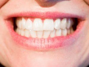 накладки на зубы