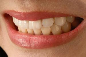 мост для зубов