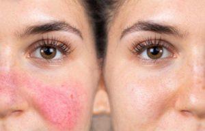 сосудистые звездочки на носу