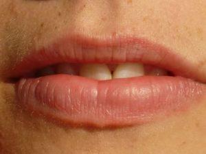 Сухие губы: причины и лечение