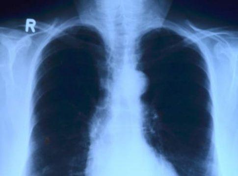 Рентген: показания к процедуре